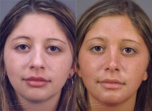 Patient 16 Rhinoplasty Before and After Front View