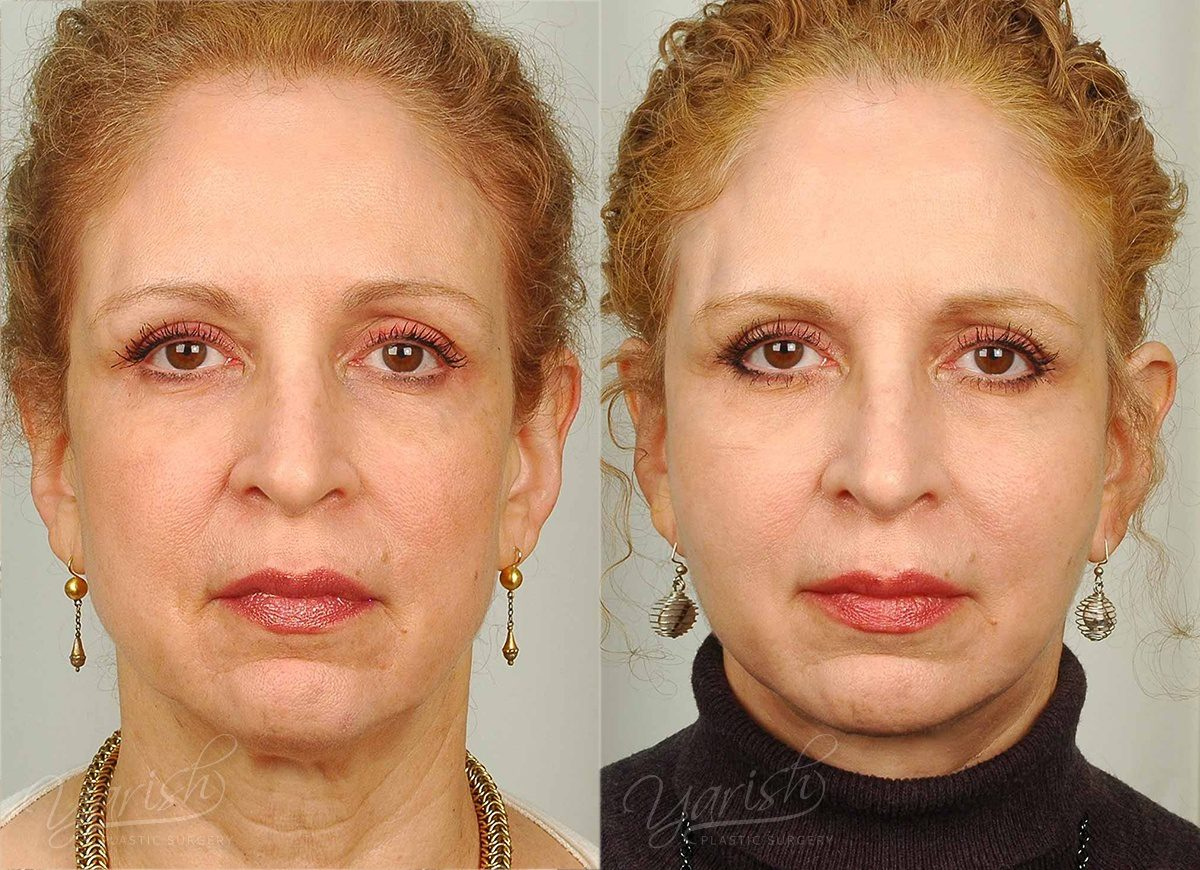 Patient 36 Face Lift and Neck Lift Before and After Front View