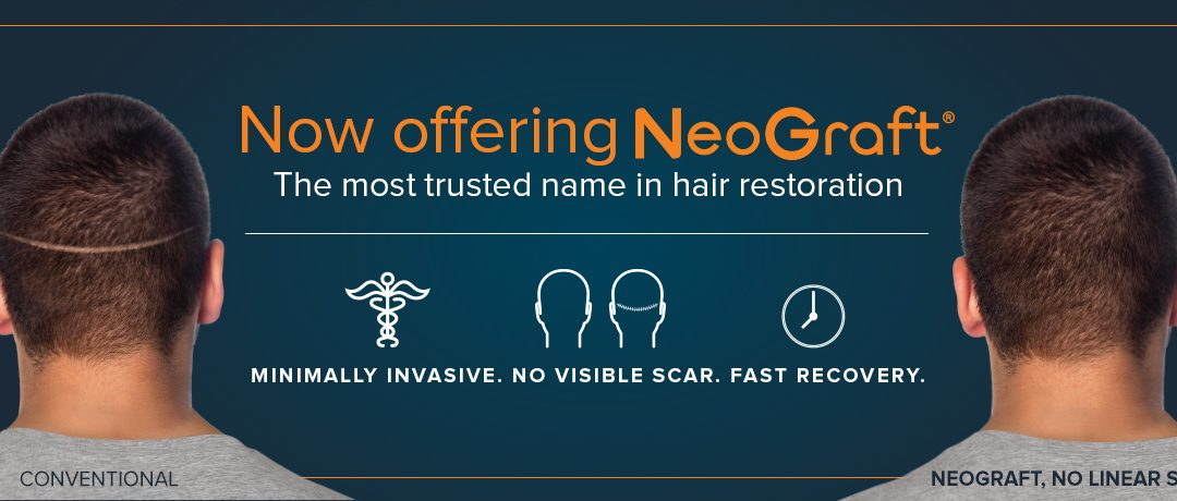 NeoGraft Advertising Graphic with Before and After Results for a Man