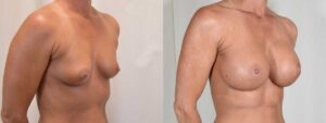 Patient 8 Breast Augmentation Before and After Right Oblique View