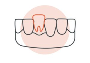 Graphic Icon Showing a Tooth That Does Not Fit Between Two Other Teeth