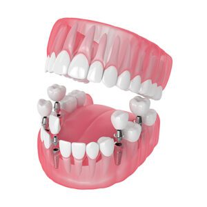 Graphic Depicting Dental Implants for Multiple Missing Teeth