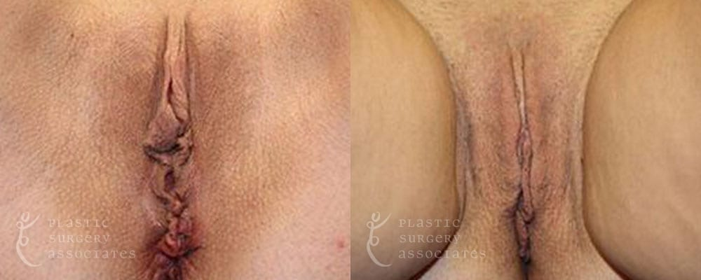 Patient 1a Vaginal Rejuvenation Before and After