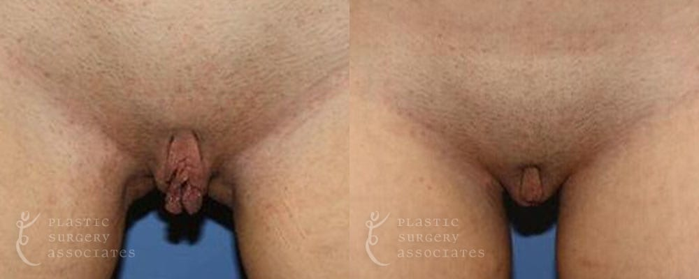 Patient 2a Vaginal Rejuvenation Before and After
