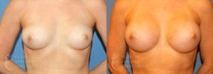 Patient 12a Breast Augmentation Before and After