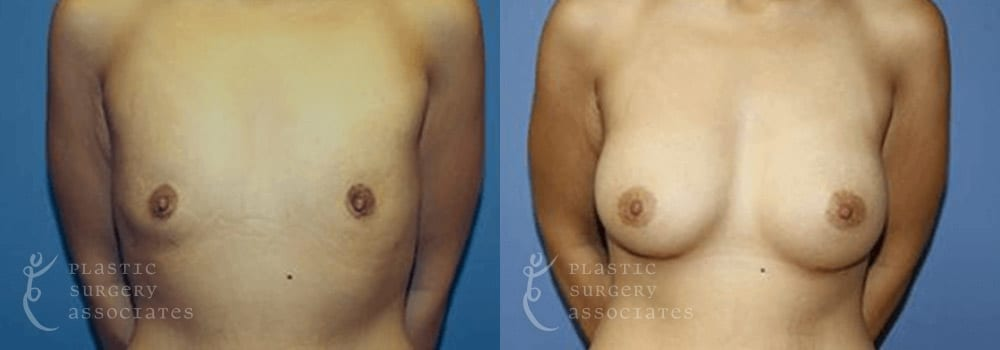 Patient 14 Breast Augmentation Before and After