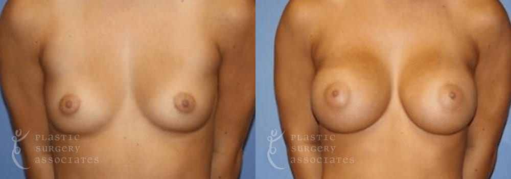 Patient 16 Breast Augmentation Before and After