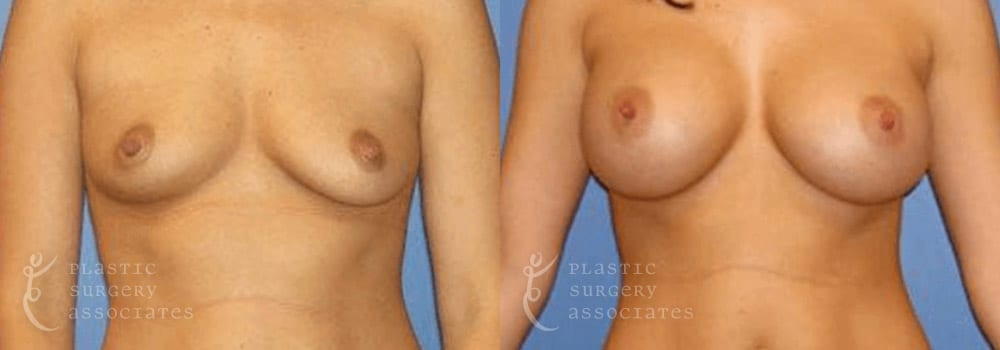Patient 26a Breast Augmentation Before and After