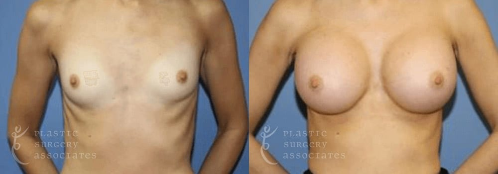 Patient 27a Breast Augmentation Before and After