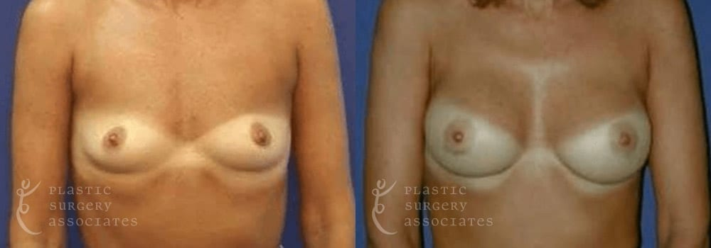 Patient 29a Breast Augmentation Before and After