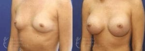Patient 30b Breast Augmentation Before and After