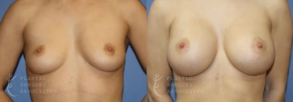 Patient 31a Breast Augmentation Before and After