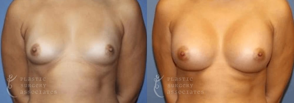 Patient 32a Breast Augmentation Before and After