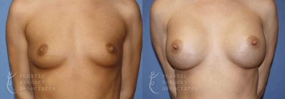 Patient 49a Breast Augmentation Before and After