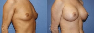 Patient 49b Breast Augmentation Before and After