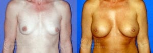 Patient 50a Breast Augmentation Before and After
