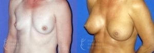 Patient 50b Breast Augmentation Before and After
