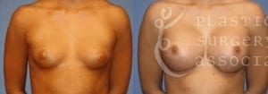Patient 51a Breast Augmentation Before and After