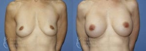 Patient 53a Breast Augmentation Before and After
