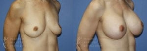 Patient 53b Breast Augmentation Before and After