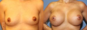Patient 54a Breast Augmentation Before and After