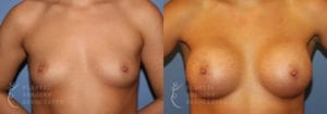 Patient 55a Breast Augmentation Before and After