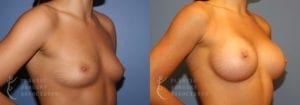 Patient 55b Breast Augmentation Before and After