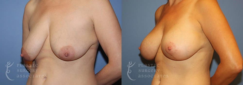 Patient 56 Breast Augmentation Before and After