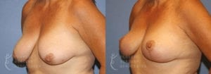 Patient 10 Mommy Makeover Before and After Left Oblique View