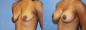Patient 12 Mommy Makeover Before and After Left Oblique View