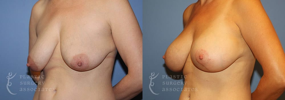 Patient 16 Mommy Makeover Before and After Left Oblique View