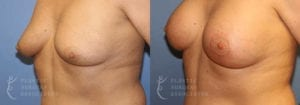 Patient 4 Mommy Makeover Before and After Left Oblique View