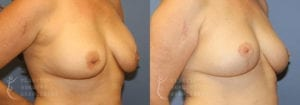 Patient 5 Mommy Makeover Before and After Right Oblique View