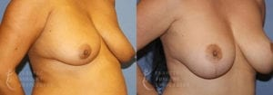 Patient 7 Mommy Makeover Before and After Right Oblique View