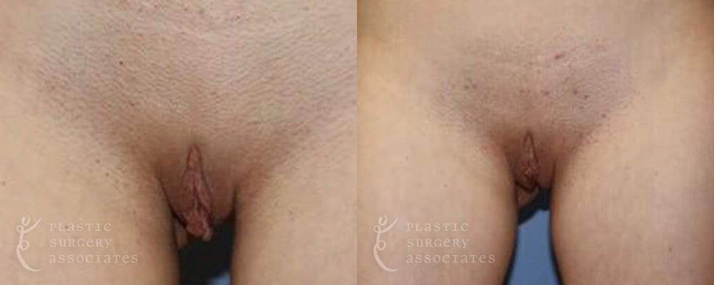 Patient 10a Labiaplasty Before and After