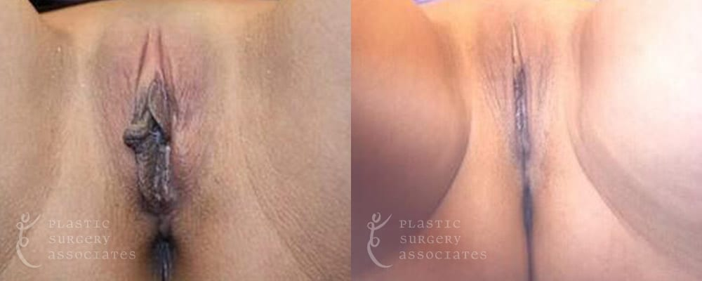 Patient 11 Labiaplasty Before and After