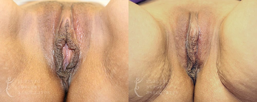 Patient 13 Labiaplasty Before and After