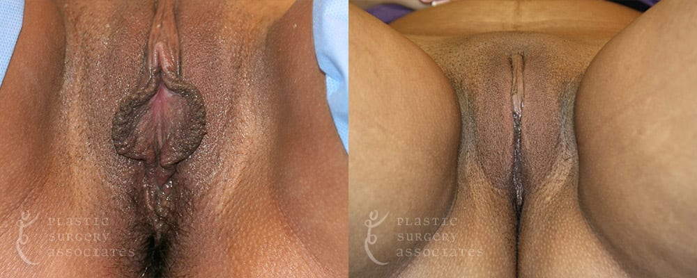 Patient 2 Labiaplasty Before and After