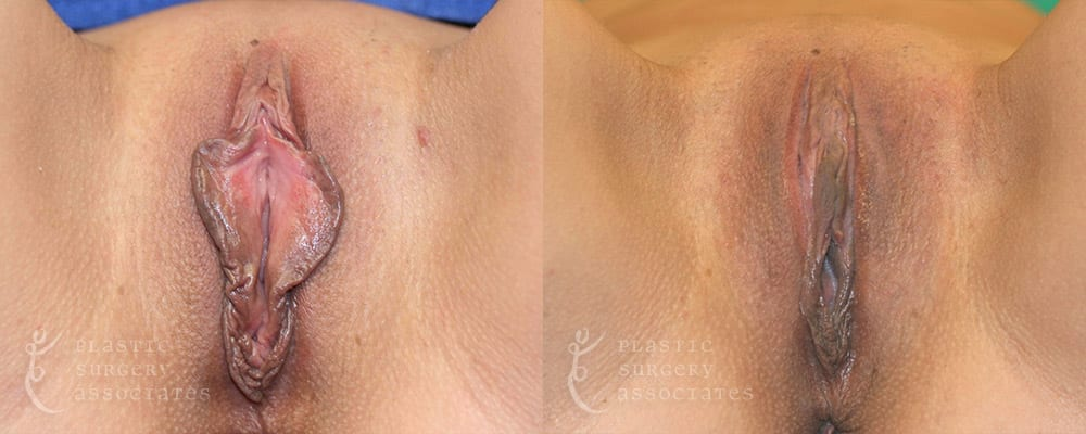 Patient 3 Labiaplasty Before and After