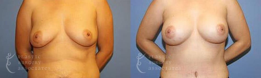 Patient 3 Mommy Makeover Before and After Front Breast View