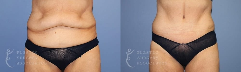 Patient 2 Tummy Tuck Before and After