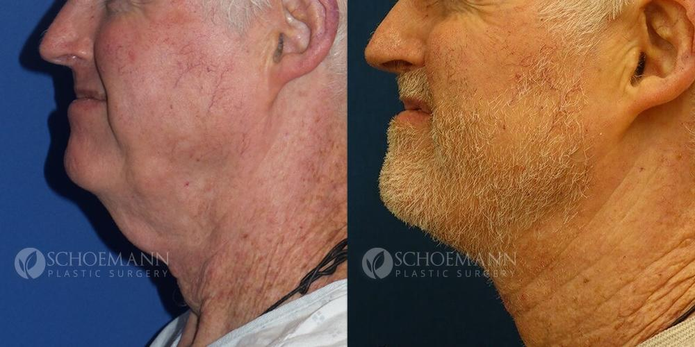 Schoemann-Plastic-Surgery_Encinitas_neck-lift-patient-1-2.jpg