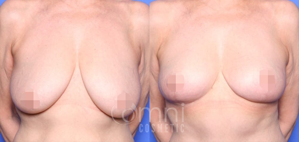 OmniCosmetic_Breast-lift_BA_Patient-1_Front_Censored3