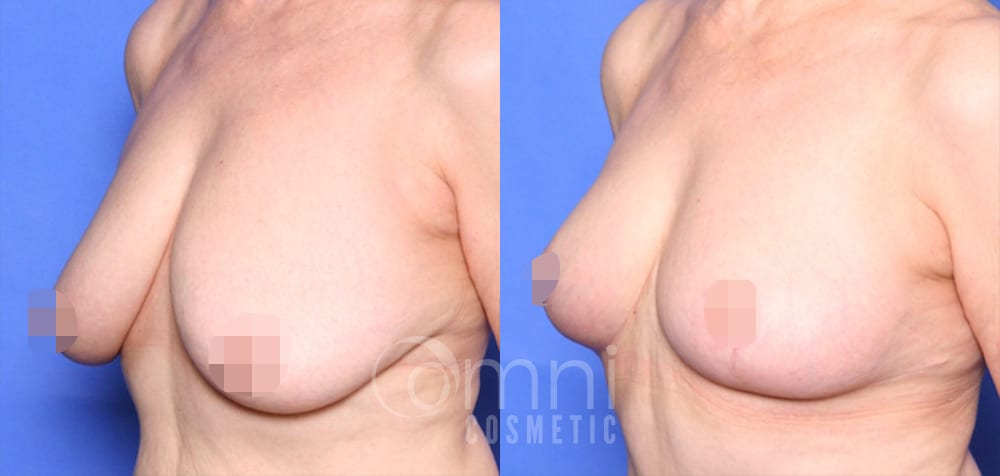 OmniCosmetic_Breast-lift_BA_Patient-1_Oblique_Censored3