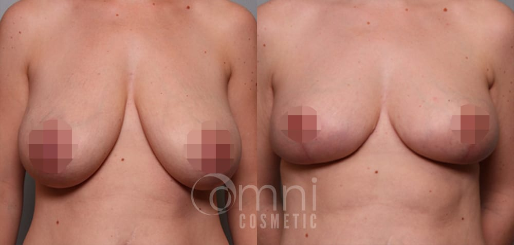 OmniCosmetic_BreastReduction_BA_Patient-1_Front_Censored3