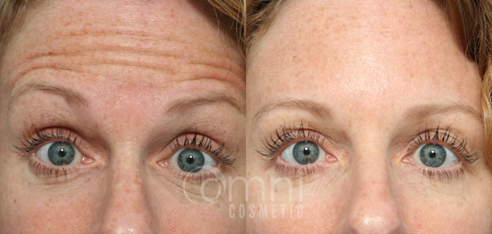 OmniCosmetic_Botox_B&A_Patient 1
