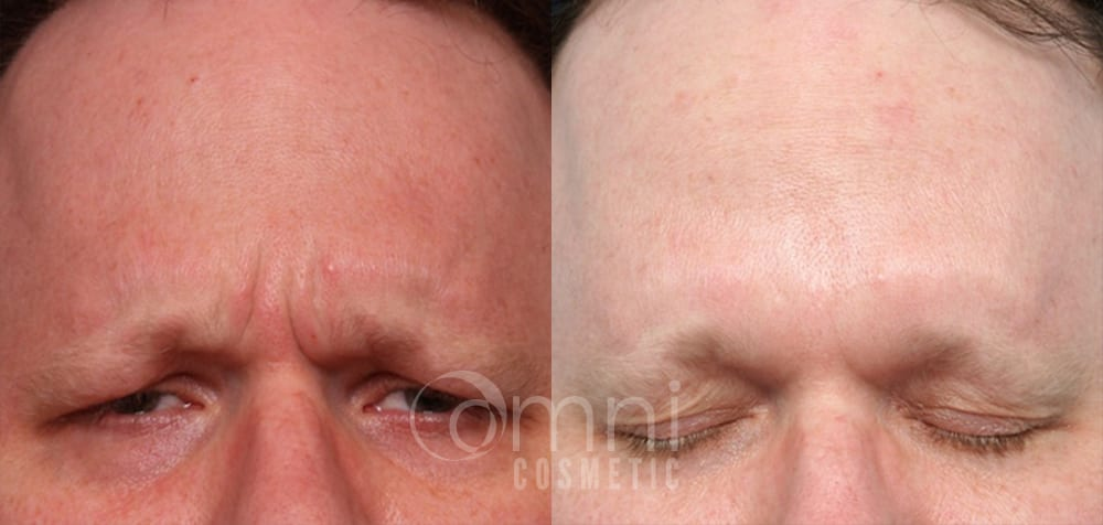 OmniCosmetic_Botox_B&A_Patient 3