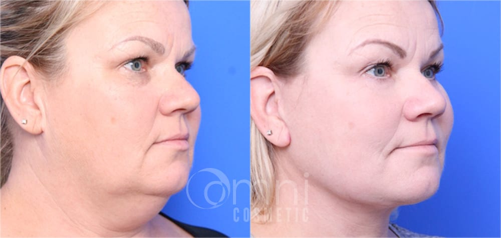 Facelift Patient Gallery