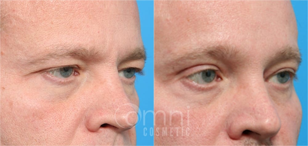 0000_OmniCosmetic_Wayzata_face_foreheadlift_B&A_Patient1_oblique