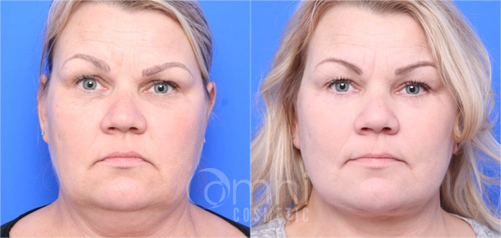 0001_OmniCosmetic_Wayzata_face_facelift_B&A_Patient1_front